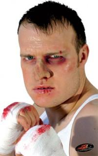 Boxer Nase Kostümaccessoire hautfarben